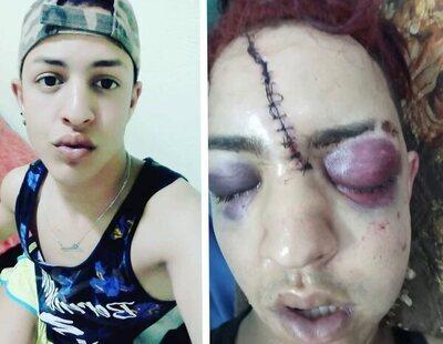 Brutal agresión homófoba: un joven residente en España, atrapado en Marruecos tras ser salvajemente golpeado y rajado en el rostro