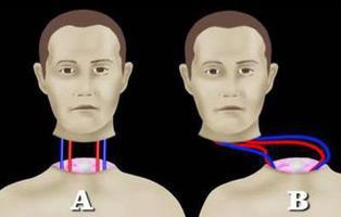El primer transplante de cabeza se realizará en 2017 en medio de la polémica