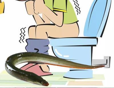 Extirpan una anguila del intestino de un hombre que se la metió por el ano para combatir el estreñimiento