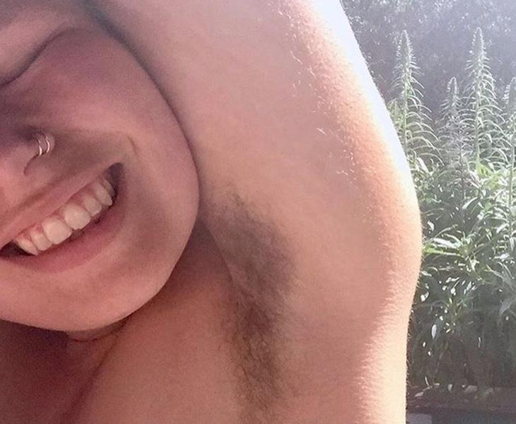 Las mujeres reciben en muchas ocasiones el rechazo de ellas a la hora de no depilarse