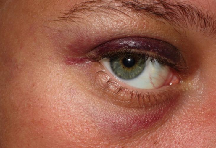 Algunas de las víctimas sufrieron golpes de consideración en la cara