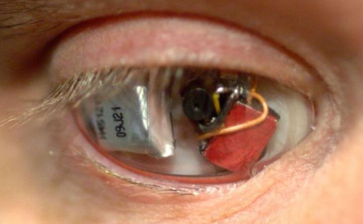 Esta es la cámara que Rob Spence se ha insertado en el ojo
