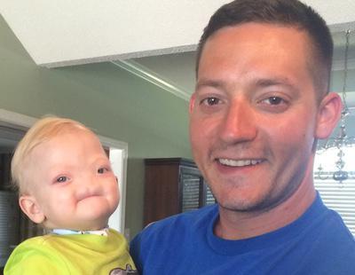 Muere con tan sólo dos años el niño que nació sin nariz ni olfato