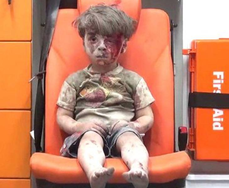 El pequeño Omran, después de haber sido rescatado de un edificio abatido en Alepo
