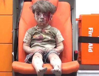 Un año después del bombardeo de Alepo, así está el pequeño Omran