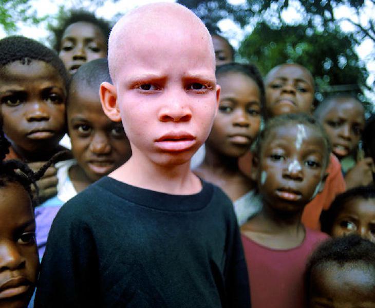 La persecución a los albinos en África no cesa