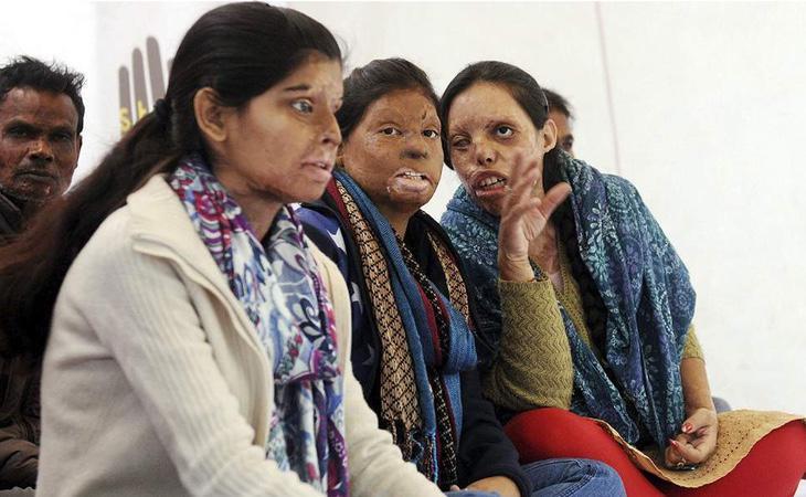 Los ataques con ácido son cada vez más frecuentes en la India