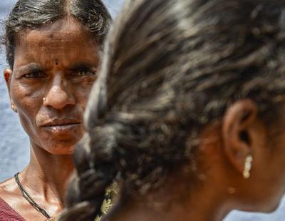 Desfiguran cinco veces con ácido sulfúrico a una mujer víctima de una violación múltiple