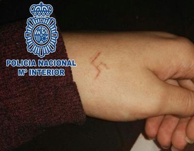 Detenidos seis ultras por marcar la esvástica con un objeto ardiente en la mano de una menor