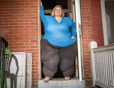Arriesga su vida porque quiere tener las caderas más anchas del mundo