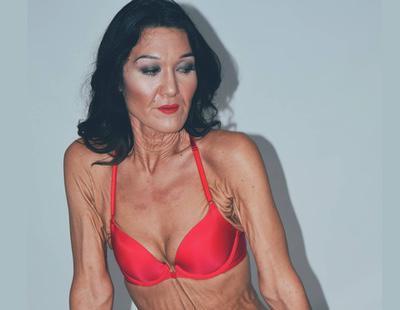 Desafía los cánones de belleza y se convierte en modelo con 26 años y una apariencia de anciana