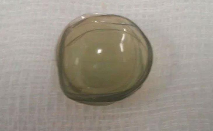 Algunas de las lentillas halladas en el ojo de la paciente