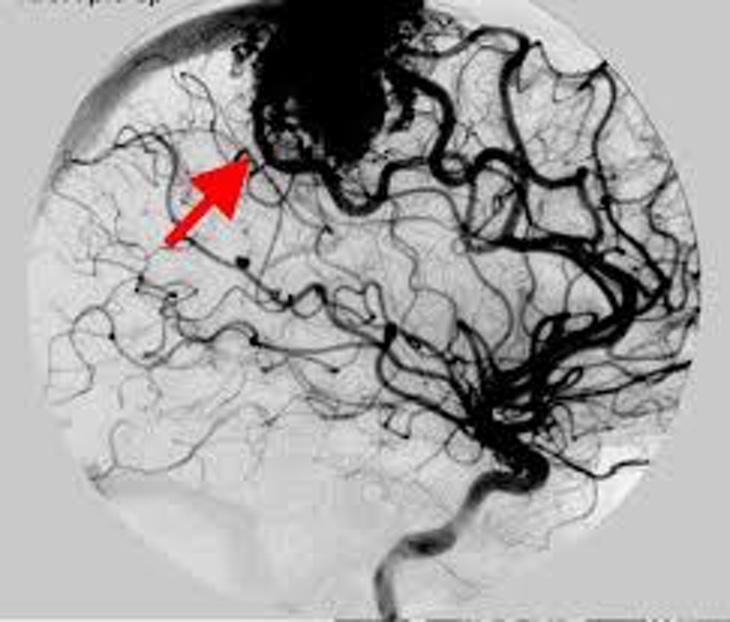 Malformación Arteriovenosa Rayos X
