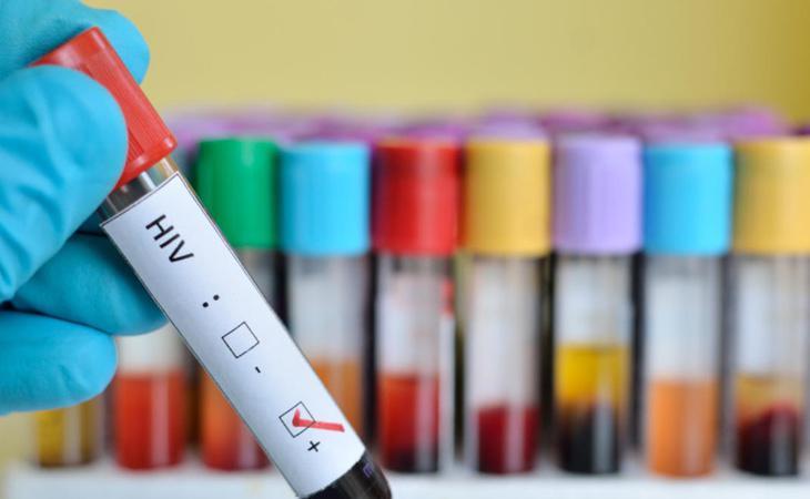 El VIH es una pandemia que afecta a toda la población