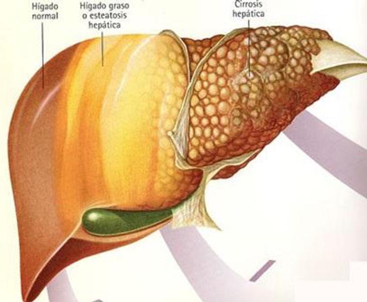 El hígado comenzará a trabajar más de la cuenta