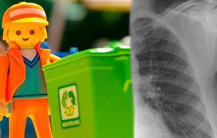 No tenía cáncer: llevaba 40 años con un Playmobil incrustado en el pulmón