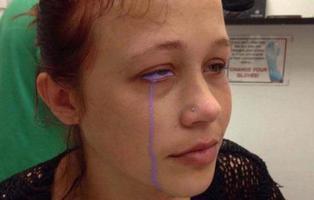 Se queda completamente ciega tras tatuarse el globo ocular