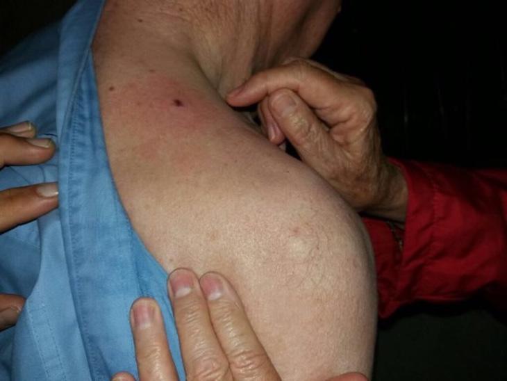 Otro de los heridos, que recibió el impacto del balín entre el hombro el cuello