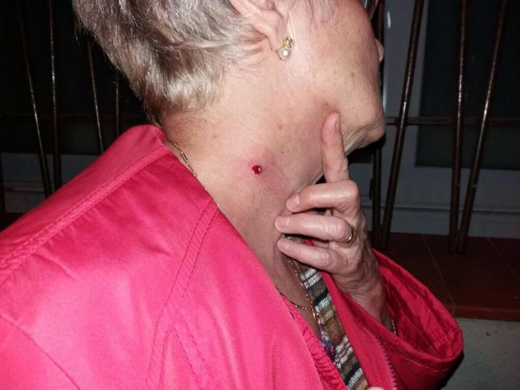 Una señora de avanzada edad sufrió el impacto del balín en el cuello, donde se puede apreciar claramente la herida