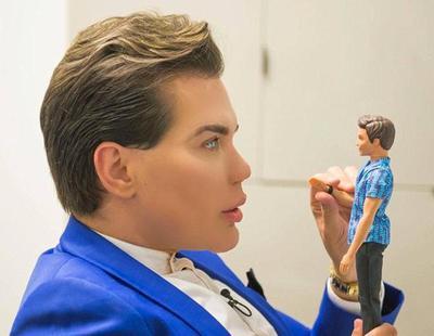 El 'Ken Humano' pierde los dientes y se plantea la posibilidad de convertirse en 'Barbie'