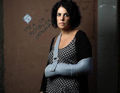 La mujer que denunció que la policía le había roto los dedos el 1-O, ahora lo desmiente