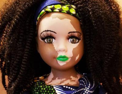 Se crea la primera muñeca con vitiligo