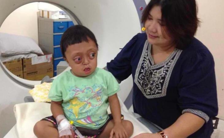 Tuvieron que realizarle muhcas pruebas hasta dar con un plan de actuación que le permitiese vivir una vida sin graves problemas cerebrales