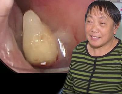 No era un catarro incurable: le estaba creciendo un diente en la nariz