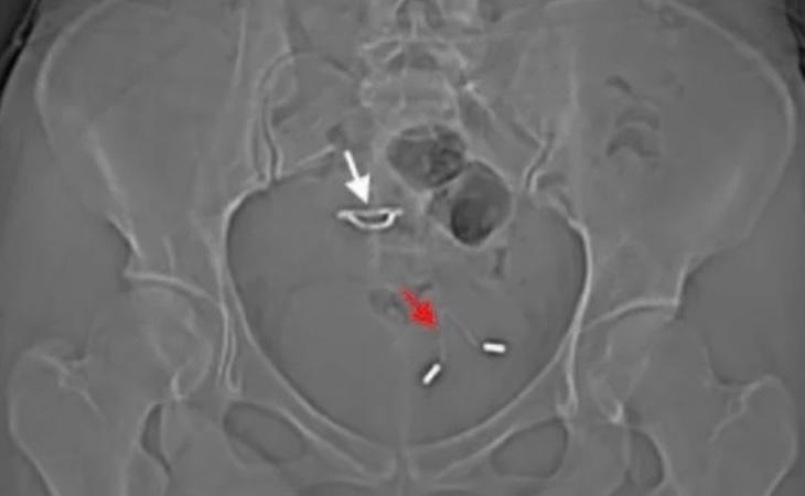 Imagen de la radiografía capturada por los médicos