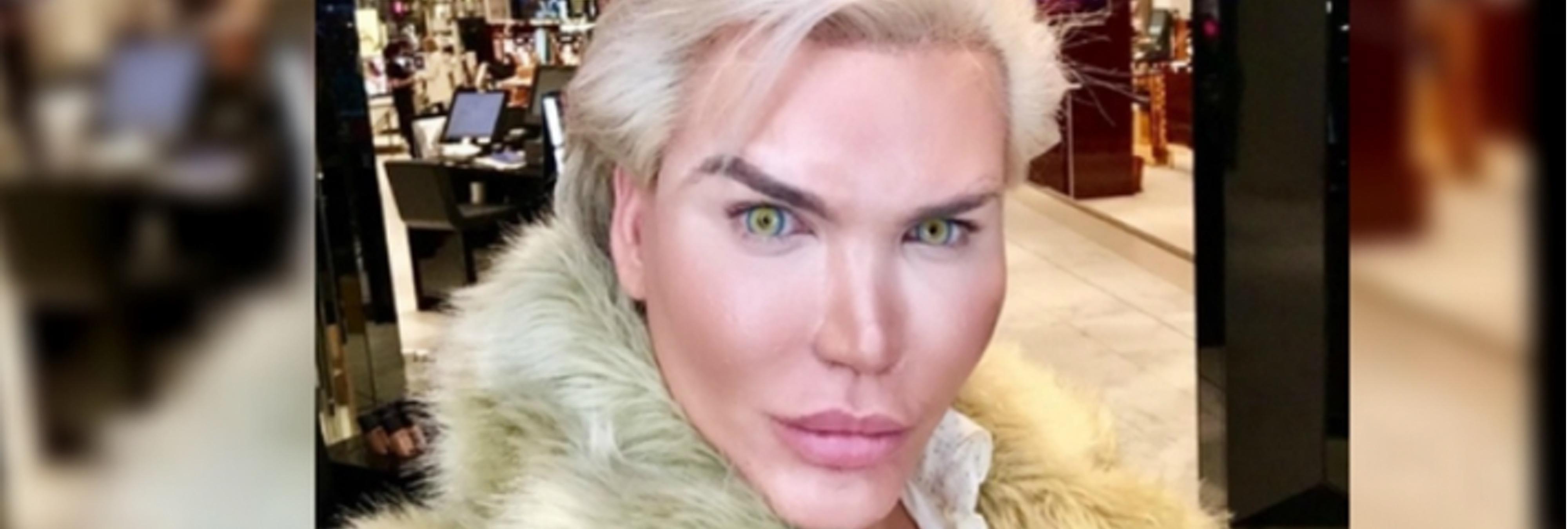 El 'Ken Humano' se opera de nuevo para parecerse al hijo de un narco