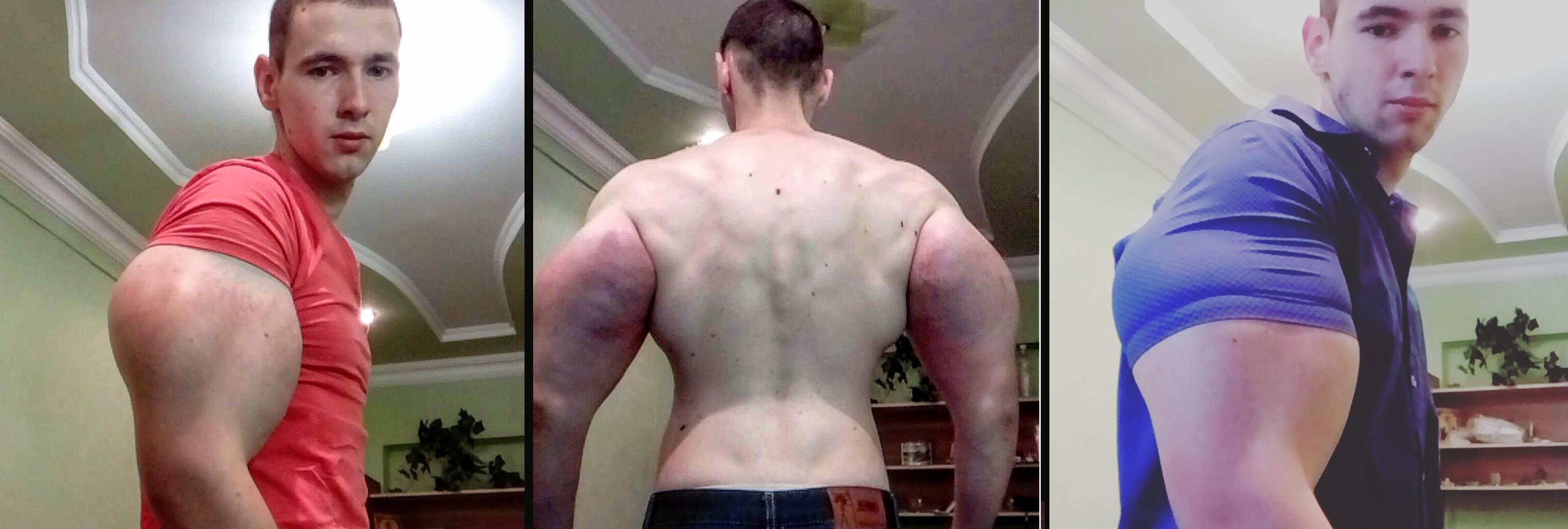 Un fisioculturista ruso se inyecta litros de aceite en los brazos para ser como Popeye