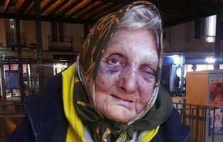 Cuatro jóvenes fascistas agreden a una anciana sin hogar de 84 años en Madrid