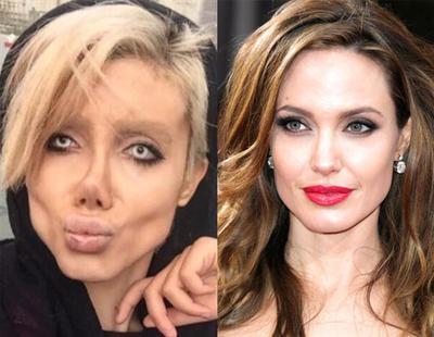 50 operaciones para ser como Angelina Jolie y termina pareciéndose a la novia cadáver