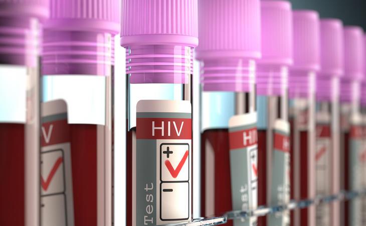 Estudios han demostrado que el tratamiento es eficaz para luchar contra la expansión del VIH
