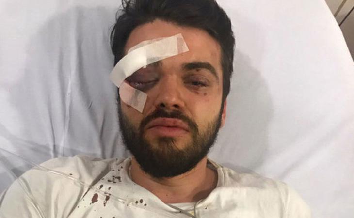 Jonathan Castellari se encuentra hospitalizado para recuperarse de sus heridas