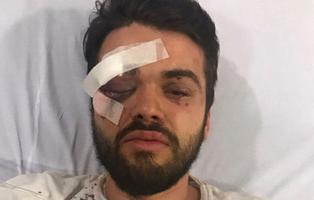 Brutal paliza contra un jugador de rugby por ser homosexual