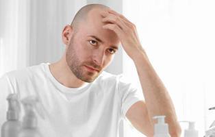 Los hombres calvos tienen más probabilidades de sufrir enfermedades cardiacas