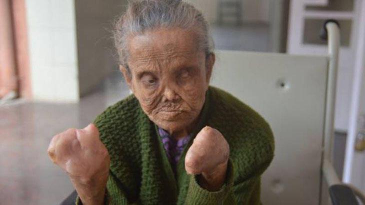 Sajida Begum ha perdido dedos y vista y con ello su pensión