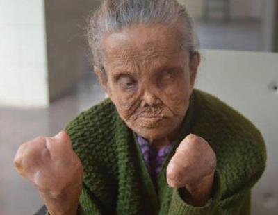 Le quitan la pensión a una mujer con lepra que ha perdido las manos y los ojos