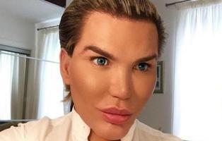 Así era el 'Ken humano' antes de medio centenar de operaciones estéticas