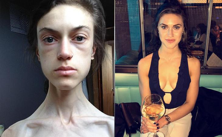 Emelle Lewis durante su enfermedad y en la actualidad