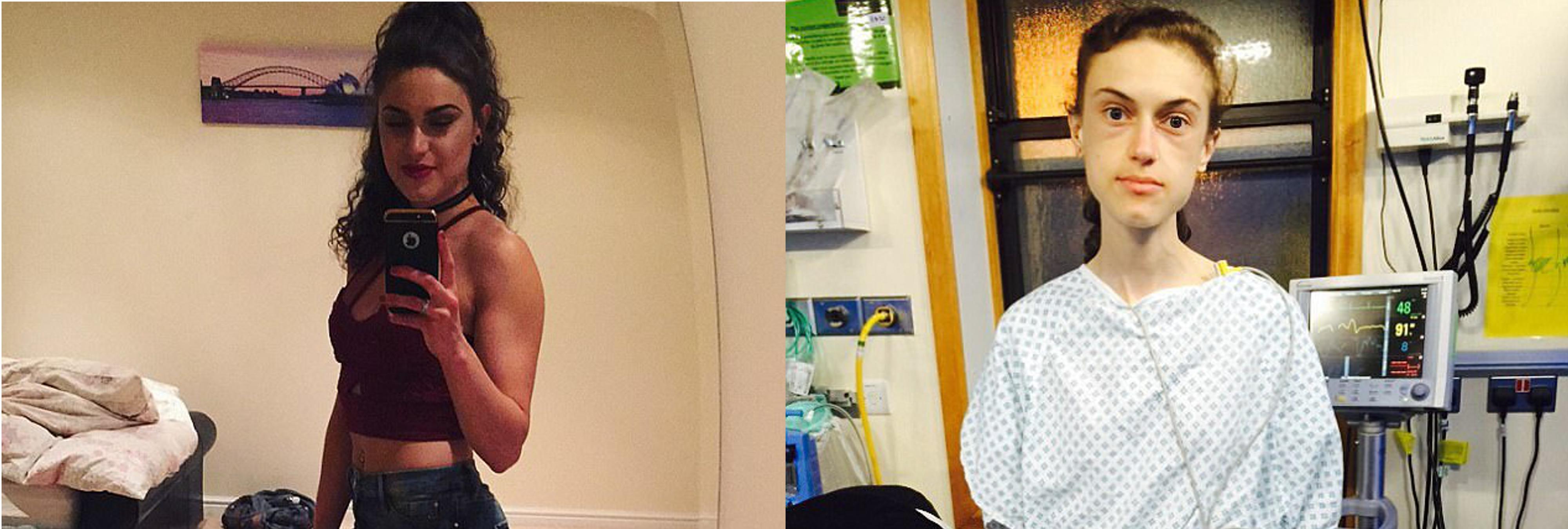 Una chica con anorexia superó su enfermedad gracias a Instagram