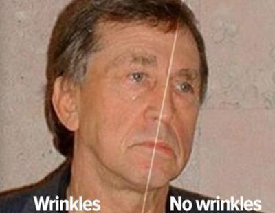 Metió su cara en un acelerador de partículas: la mitad no ha envejecido en cuatro décadas