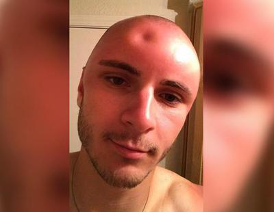 Pasó varias horas tomando el Sol y se encontró con un agujero en la cabeza