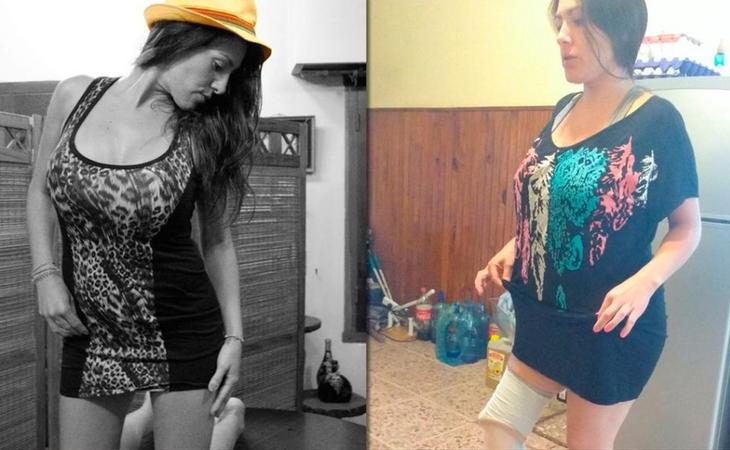 Mariela Ayala, antes y después de la operación