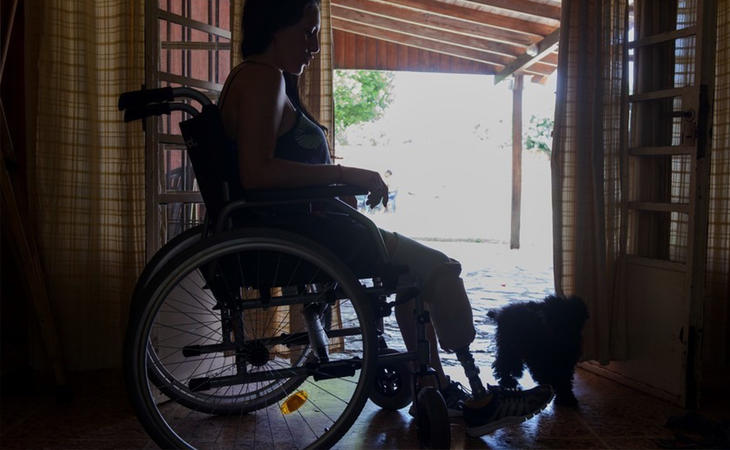 Mariela Ayala tendrá que aprender a vivir con una prótesis