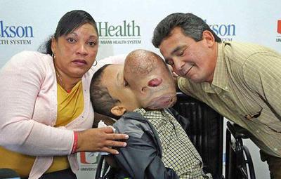 Fallece el niño cubano al que le extrajeron un tumor facial de 4,5 kg