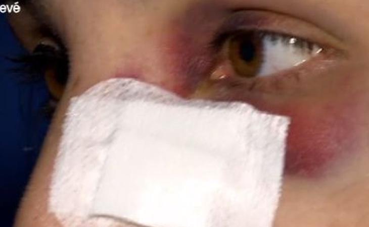 ACèlia Casanova le propinaron un puñetazo que le hizo una fractura en los huesos de la nariz y varios hematomas
