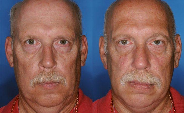 El grado de las arrugas en la parte inferior del rostro del fumador (derecha) es visiblemente mayor