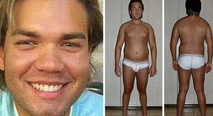 El aspecto del 'Ken humano' antes de las operaciones es bastante diferente